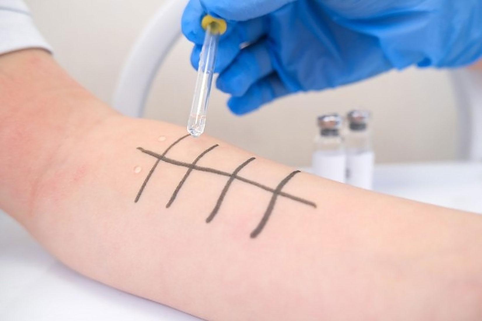 tes-alergi-skin-prick-test-klinik-tht